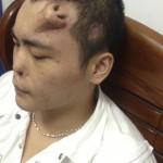 Perde il naso in un incidente: i medici glielo fanno ricrescere in fronte